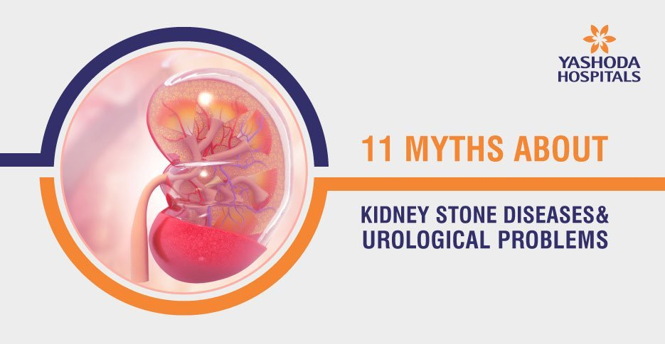 11 Myths about stone diseases and urological problems