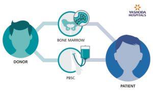 Article. Haplo-identical Stem Cell--Yashoda Hospitals