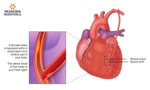 Benefits of Minimally Invasive Cardiac Bypass-Yashoda Hospitals