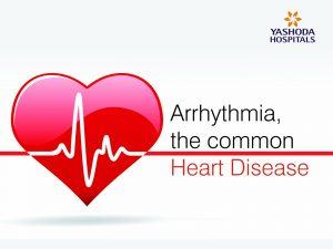 Arrhythmia the common heart disease - 1