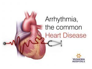 Arrhythmia the common heart disease