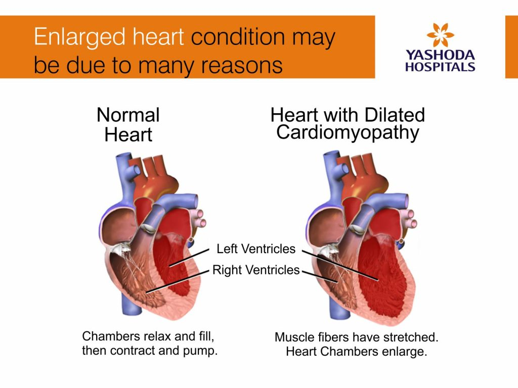 Enlarged heart condition may lead to heart failure, blood clots, heart murmur and cardiac arrest