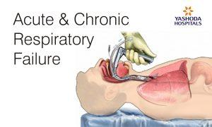 acute and chronic respiratory failure