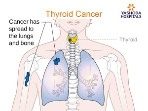 Endocrinal dysfunctions Thyroid Cancer