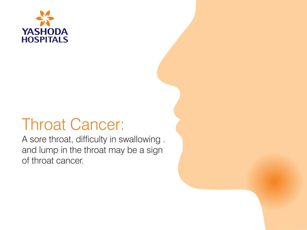 How is a sore throat treated - on its own or under the supervision of a doctor