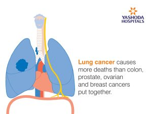 Blog_Articles_Images__Lung_cancer