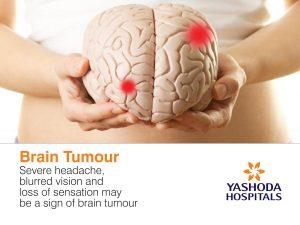 brain tumour severe headache