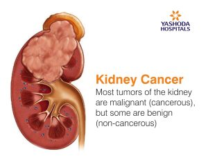kidney are malignant