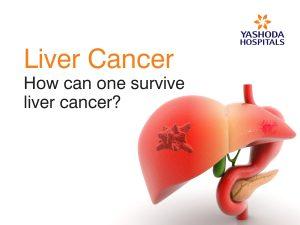 survive liver cancer