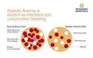Aplastic Anemia is evident