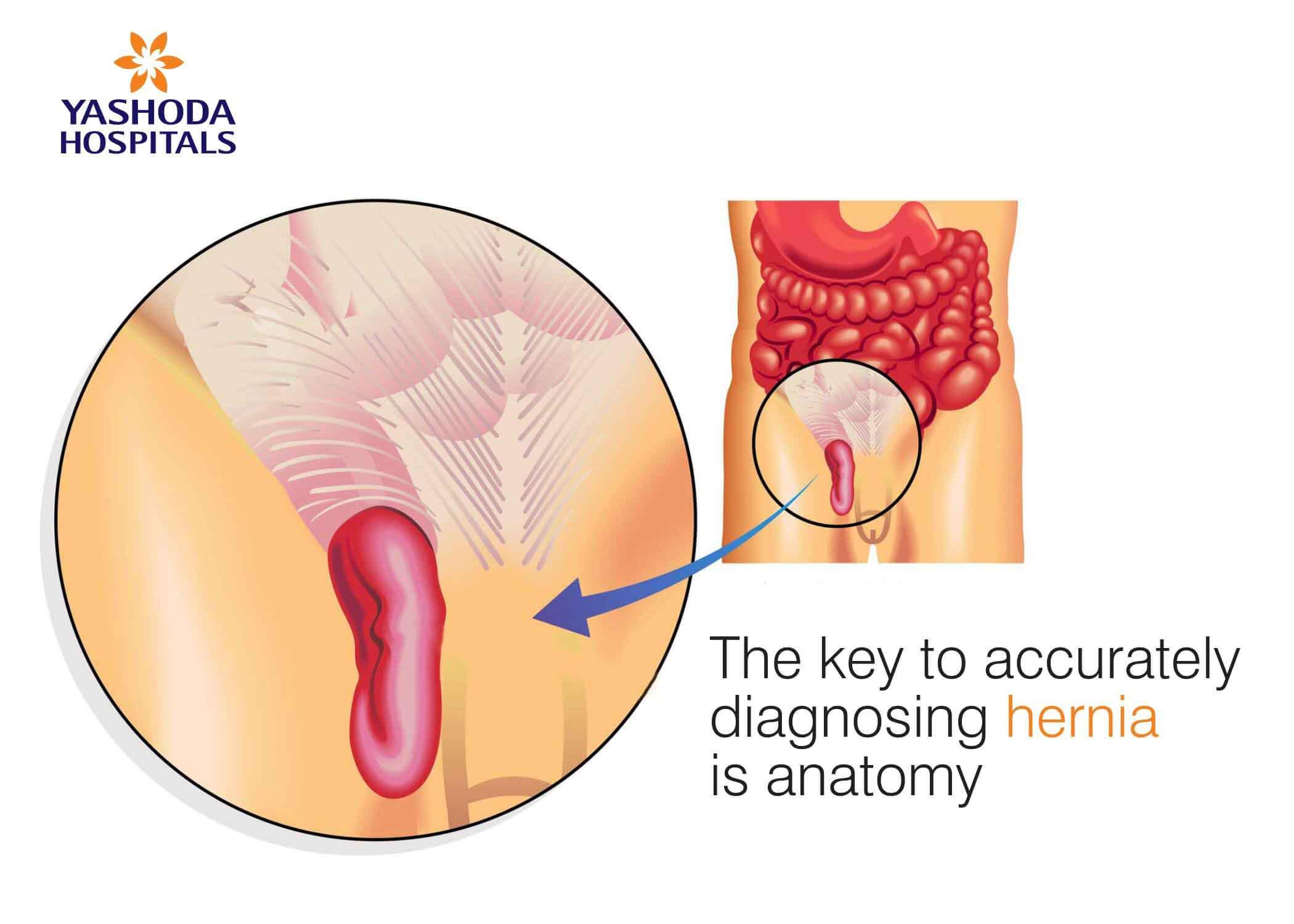 diagnosing hernia
