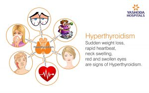 signs of Hyperthyroidism