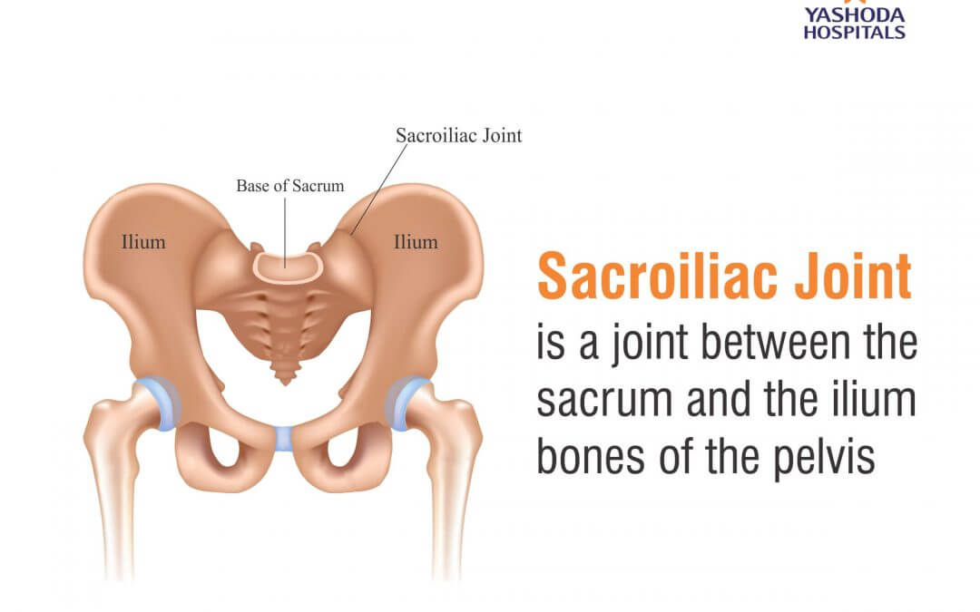 What is a sacroiliac joint injection?