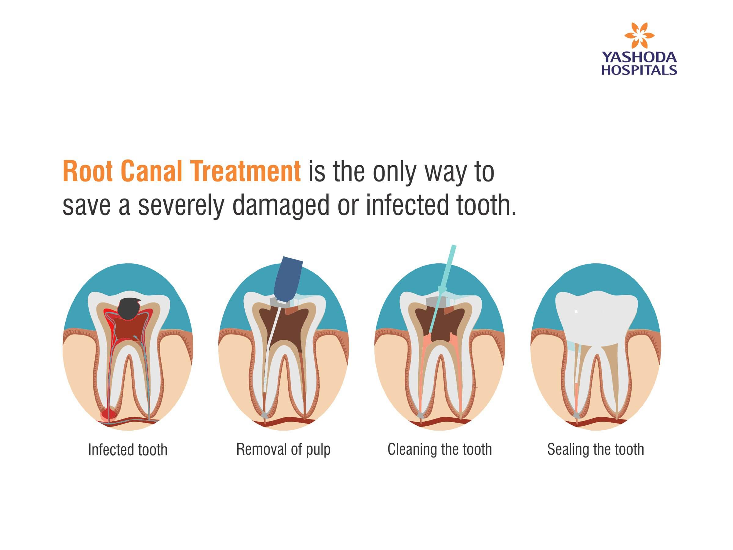 Root Canal is used to treat infection