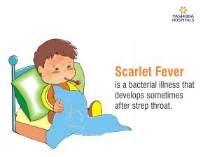 Scarlet Fever is a childhood illness caused by a bacterial infection