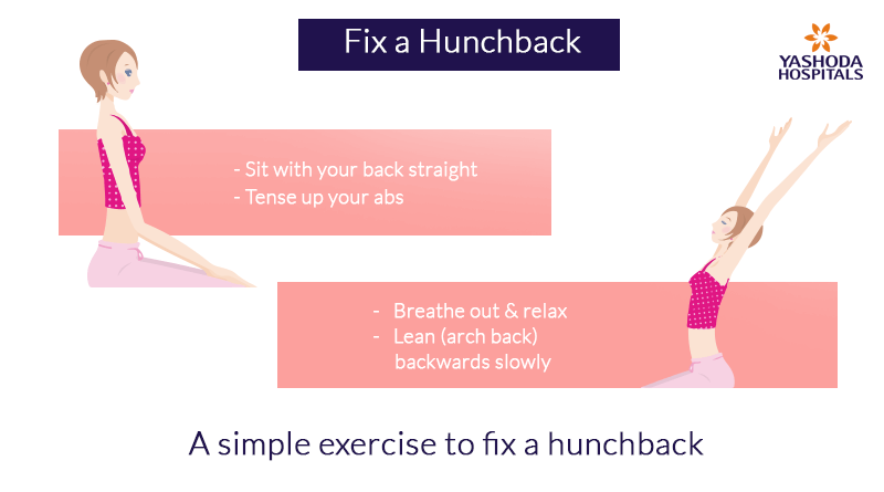 A simple exercise to fix a hunchback