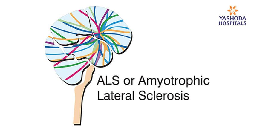 ALS or Amyotrophic Lateral Sclerosis is a nervous disorder that is marked by muscle weakness and physical dysfunction