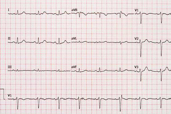 AV nodal re-entrant tachycardia