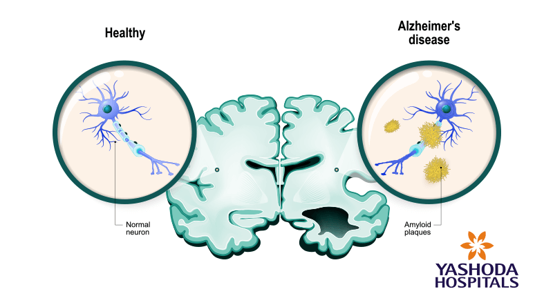 Abnormal beta amyloid plaques are hallmarks of Alzheimer's disease