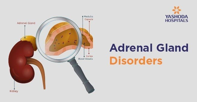How to diagnose and treat Adrenal Gland Disorders? How to stage Adrenal cancer?