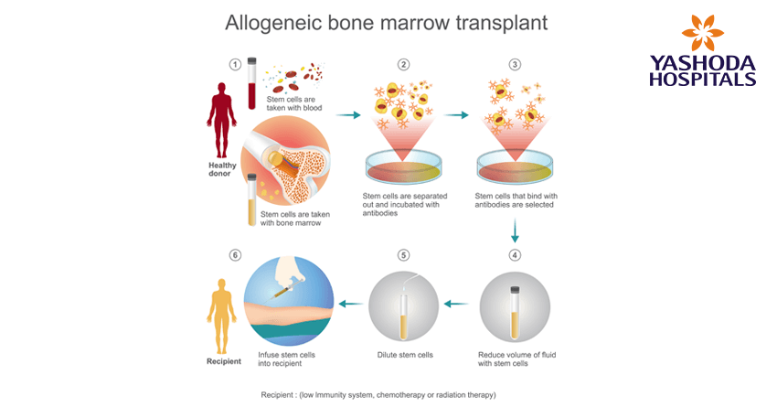 Allogenic stem cell transplant