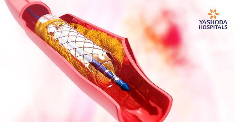 Angioplasty cases