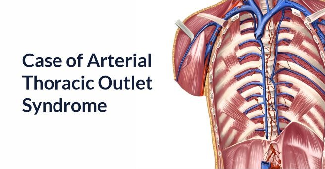Case of Arterial Thoracic Outlet Syndrome