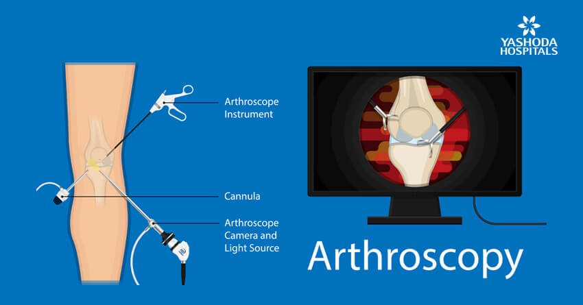 Arthroscopic ACL reconstruction surgery