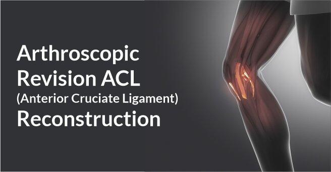 Arthroscopic Revision ACL (Anterior Cruciate Ligament) Reconstruction