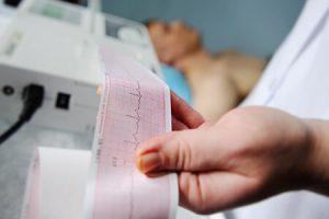 Atrial-fibrillation-diagnosis