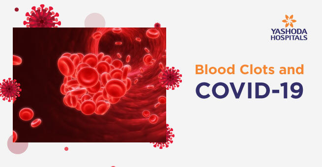 Blood Clots and COVID-19