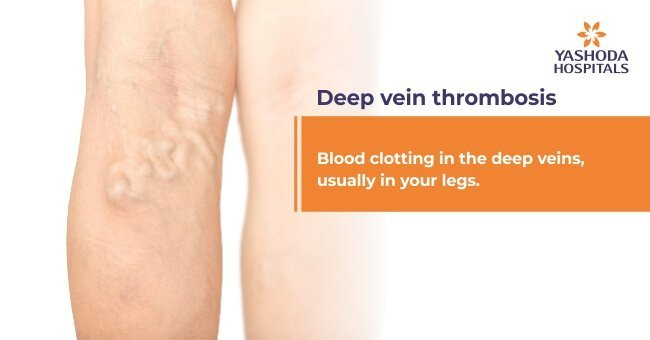 Blood clotting in the deep veins