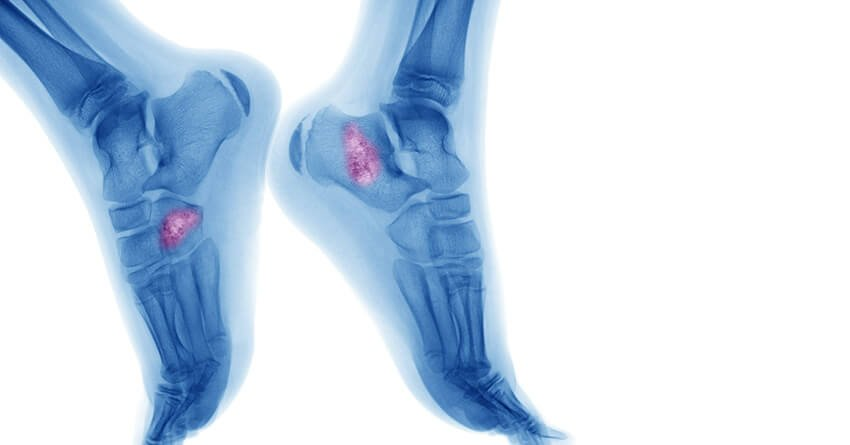 Bone Cancer Usually Affects The Long Bones That Make Up Arms And Legs