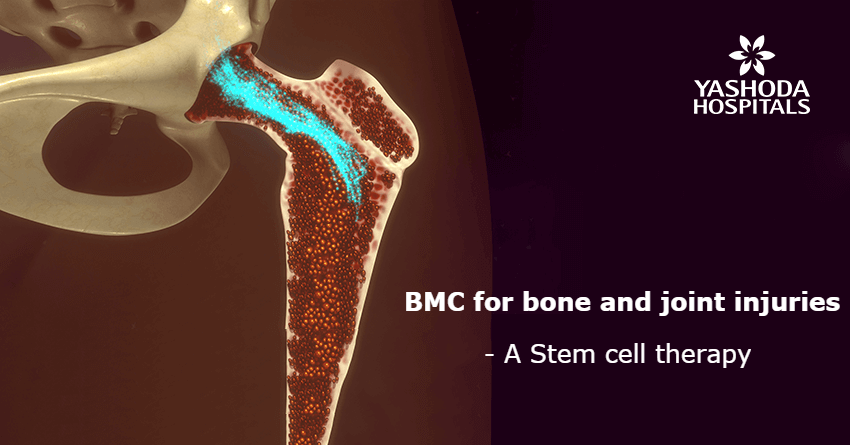Bone Marrow Concentrate (BMC), a regenerative therapy for bone and joint injuries