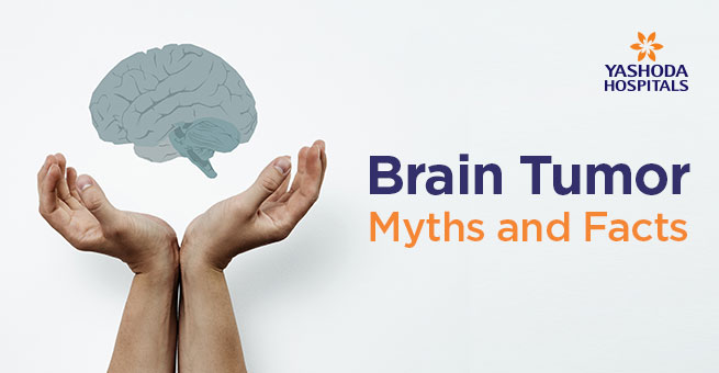 Brain Tumor Myths and Facts