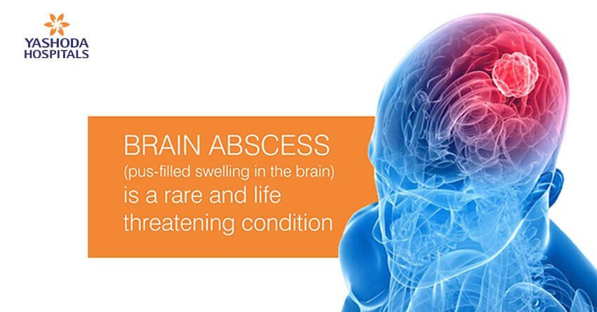 Brain abscess (pus-filled swelling in the brain) is a rare and life threatening condition