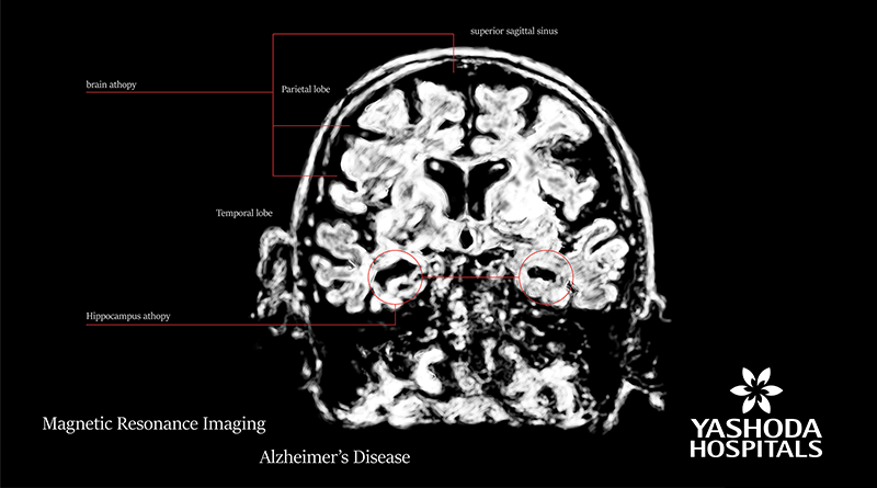 Brain imaging for diagnosing Alzheimer's disease