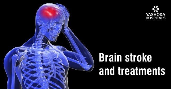 Brain stroke and treatments
