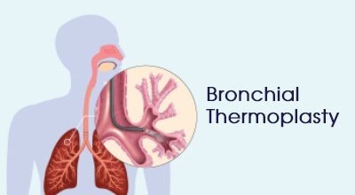 Bronchial Thermoplasty Infographics