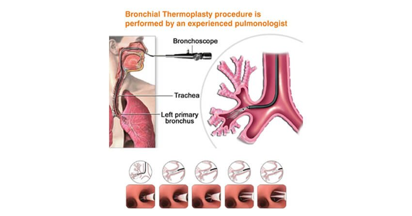 Bronchial thermoplasty procedure