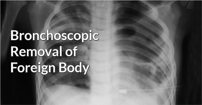 Bronchoscopic Removal of Foreign Body
