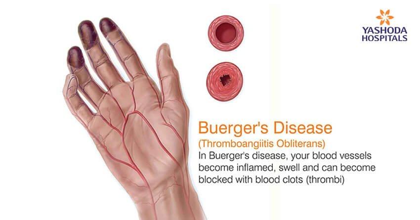 Buergers Disease thromboangiitis obliterans