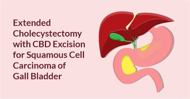 Extended Cholecystectomy with CBD Excision for Squamous Cell Carcinoma of Gall Bladder