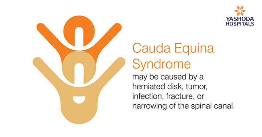 Cauda equina syndrome may be caused by a herniated disk, tumor, infection, fracture, or narrowing of the spinal canal