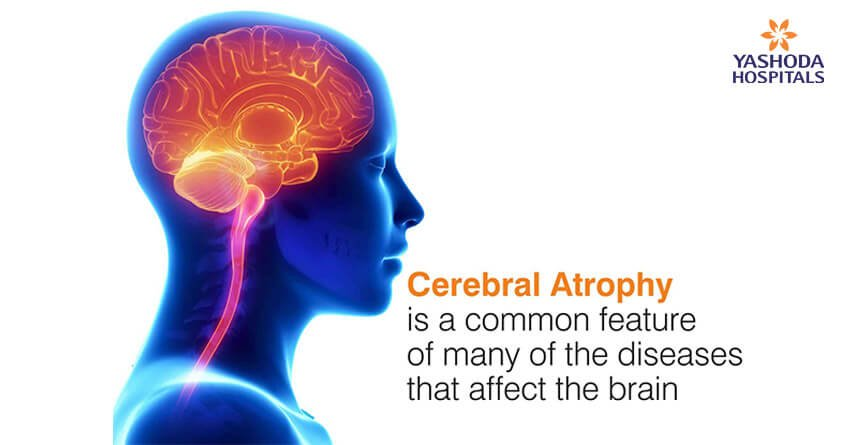 Cerebral atrophy is a common feature of many of the diseases