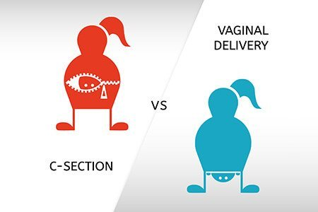 Cesarean delivery Vs Normal Delivery