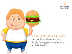 Childhood obesity is a serious medical condition