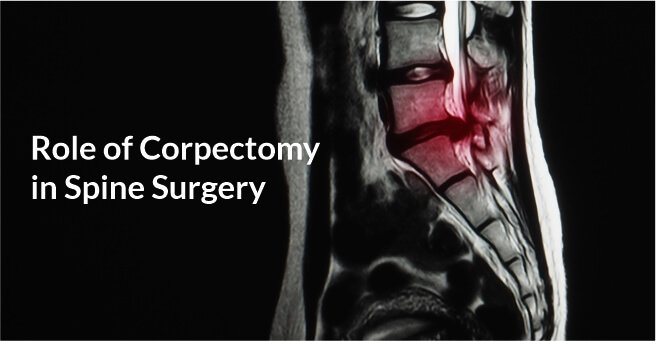 Corpectomy in Spine Surgery case-2