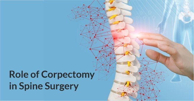 Role of Corpectomy in Spine Surgery