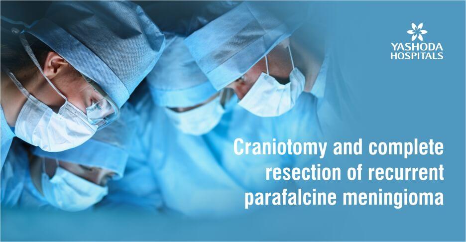 Craniotomy and complete resection of recurrent parafalcine meningioma